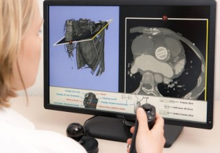 FH Flensburg verbetert medische beeldweergave